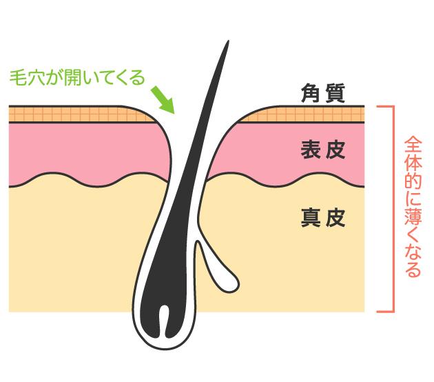 合成界面活性剤は皮膚を萎縮する
