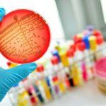 表皮ブドウ球菌はどのように肌を守っているのか?