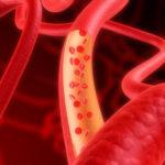 肌の毛細血管も減っていく?!皮膚の末梢血管の老化現象について